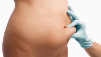 riesgos-de-la-liposuccion